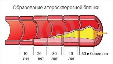развитие атеросклероза сосудов сердца