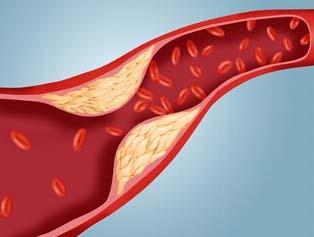 холестерин в сосудах