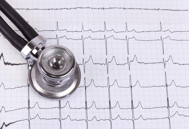 Инфаркт обследование