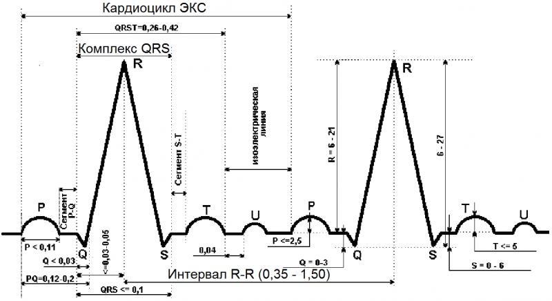 Комплекс QRS