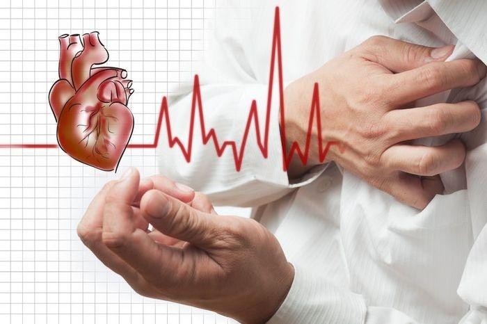 Сердце аритмия